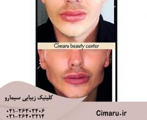 زاویه سازی فک و صورت