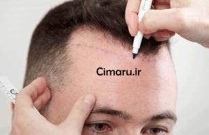 کاشت و ترمیم موی طبیعی