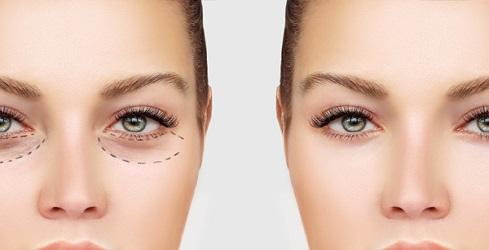 زیبایی پوست و صورت(رف گودی زیر چشم)
