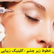 تزریق بوتاکس زیر چشم