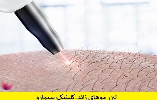 لیزر مو بدن