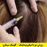 میکرونیدلینگ در درمان ریزش مو
