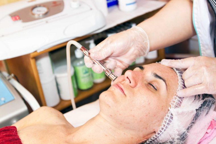 میکرونیدلینگ و درمان جای زخم