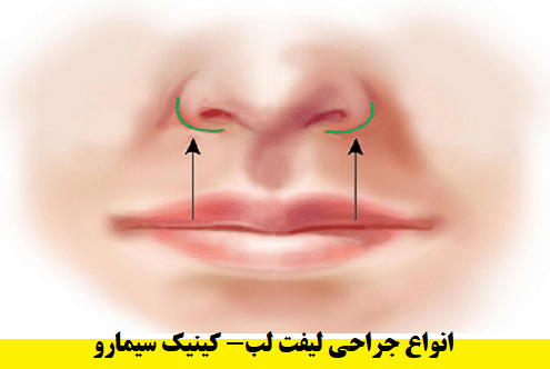 انواع-جراحی-لیفت-لب-بالا