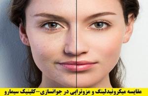 مزوتراپی در جوانسازی پوست-
