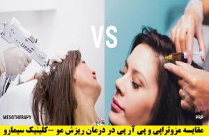 مزوتراپی و prp در درمان ریزش مو
