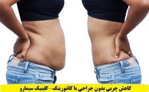 کاهش چربی بدون جراحی