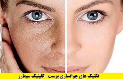 تکنیک های جوانسازی-پوست