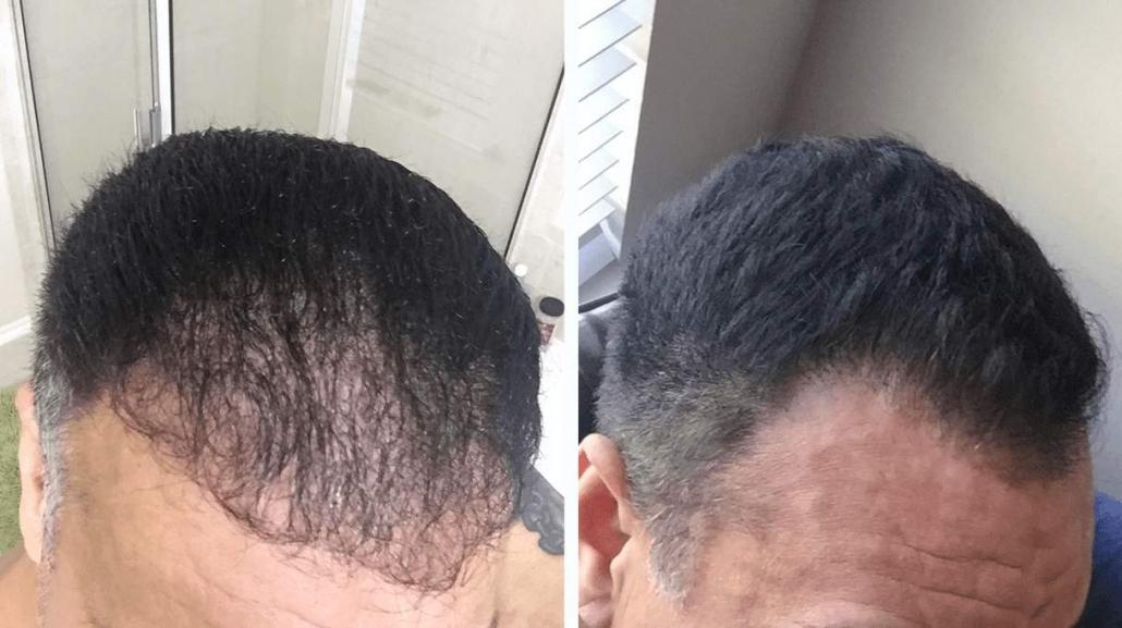 لیزر درمانی ریزش مو