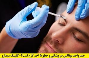 میزان تزریق بوتاکس پیشانی