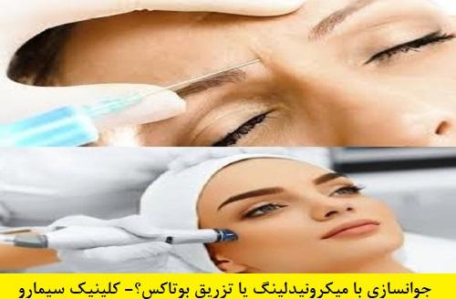 میکرونیدلینگ یا تزریق بوتاکس