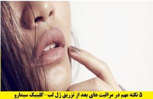 نکات مهم در تزریق ژل لب