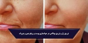 تزریق ژل در جوانسازی پوست