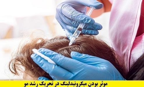 درمان ریزش مو با میکرونیدلینگ