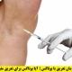 درمان تعریق با بوتاکس