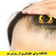روش های درمان ریزش مو