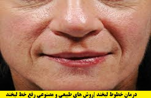 درمان خطوط لبخند