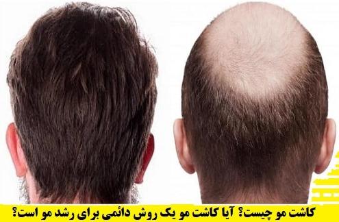 کاشت مو-ترمیم مو