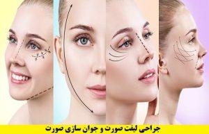 جراحی صورت