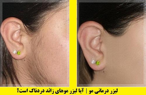 لیزر درمانی مو