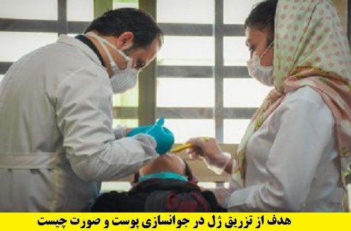 هدف از تزریق ژل