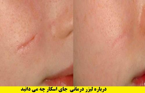 درمان اسکار با لیزر