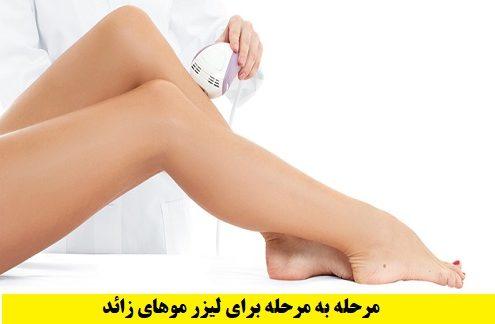 درمان لیزر مو زائد