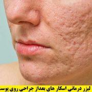 لیزر درمانی اسکار جراحی