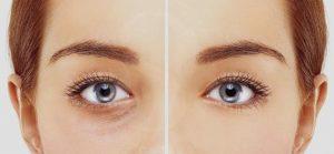 فیلرهای پوستی برای لیفت چشم و ابرو بدون جراحی - لیفت ابرو با نخ