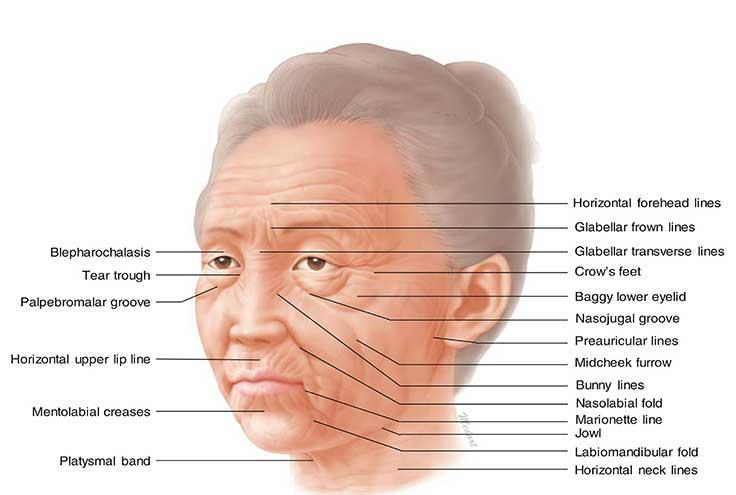 نخ لیفت PDO را در کدام قسمتهای صورت و بدن میتوان استفاده کرد؟